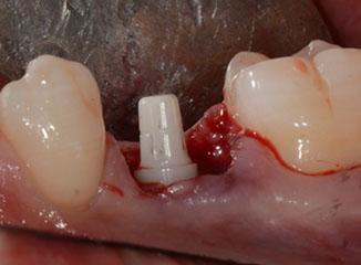 Sofortimplantation mit einteiligem Zirkondioxidkeramik