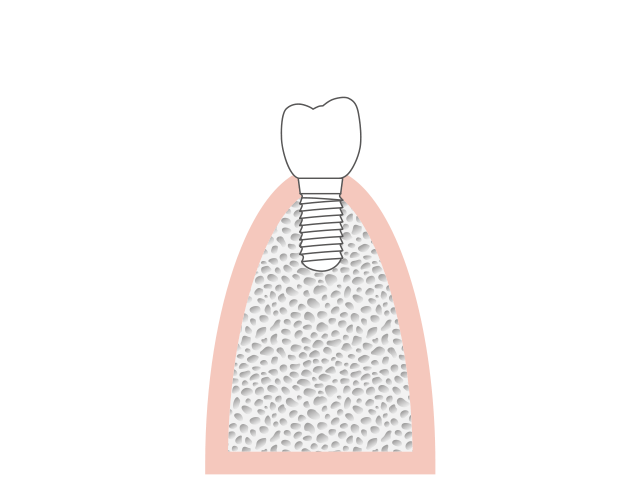 Attachment of the tooth replacement to ceramic.implant