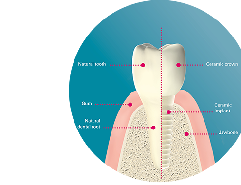 healthy tooth/ceramic implant with an artificial crown perfect imitation of nature in both esthetics/function