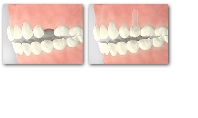 An implant allows us to integrate a fixed, individual crown into your jawbone without having to grind down other teeth.