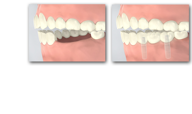 Implants allow us to install a fixed bridge for up to 3 adjacent missing teeth without having to damage other teeth.
