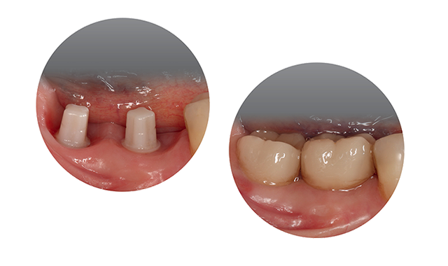 Osseointegrated ceramic.implant with preformed peri-implant soft tissue using temporary restorations.