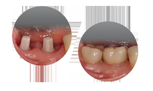 Osseointegrierte ceramic.implant mit ausgeformtem periimplatären Weichgewebe mittels provisorischer Versorgung