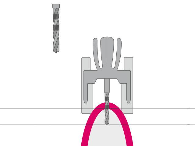 pilot.drill (2.0, 2.5, 3.0) Vorbohren des Implantatbetts, Fixieren der Achsneigung & Implantattiefe