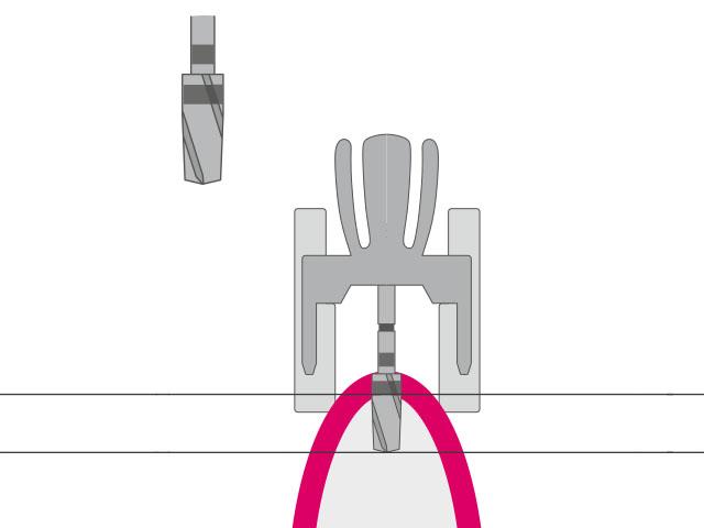 profiledrill – Aufbereiten des Implantatbetts