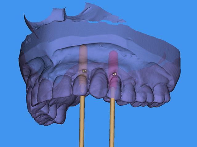 Freigabe der Implantatplanung